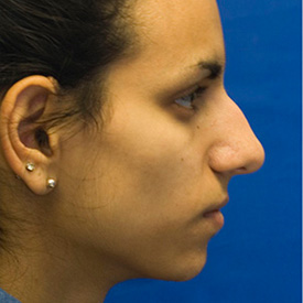 Before Ethnic rhinoplasty profile