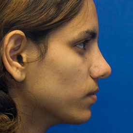 After Ethnic rhinoplasty profile