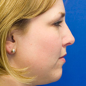 After dorsal hump rhinoplasty