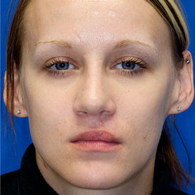 After Cleft Nose Rhinoplasty