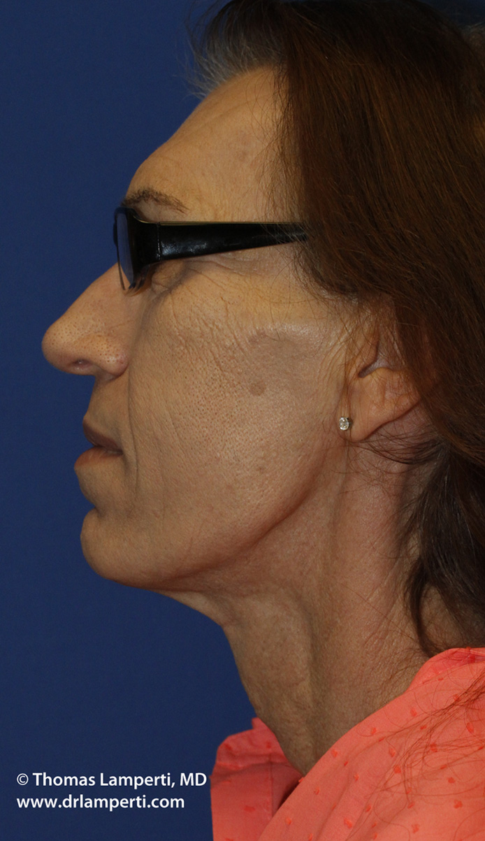 After Tracheal Shave L Profile