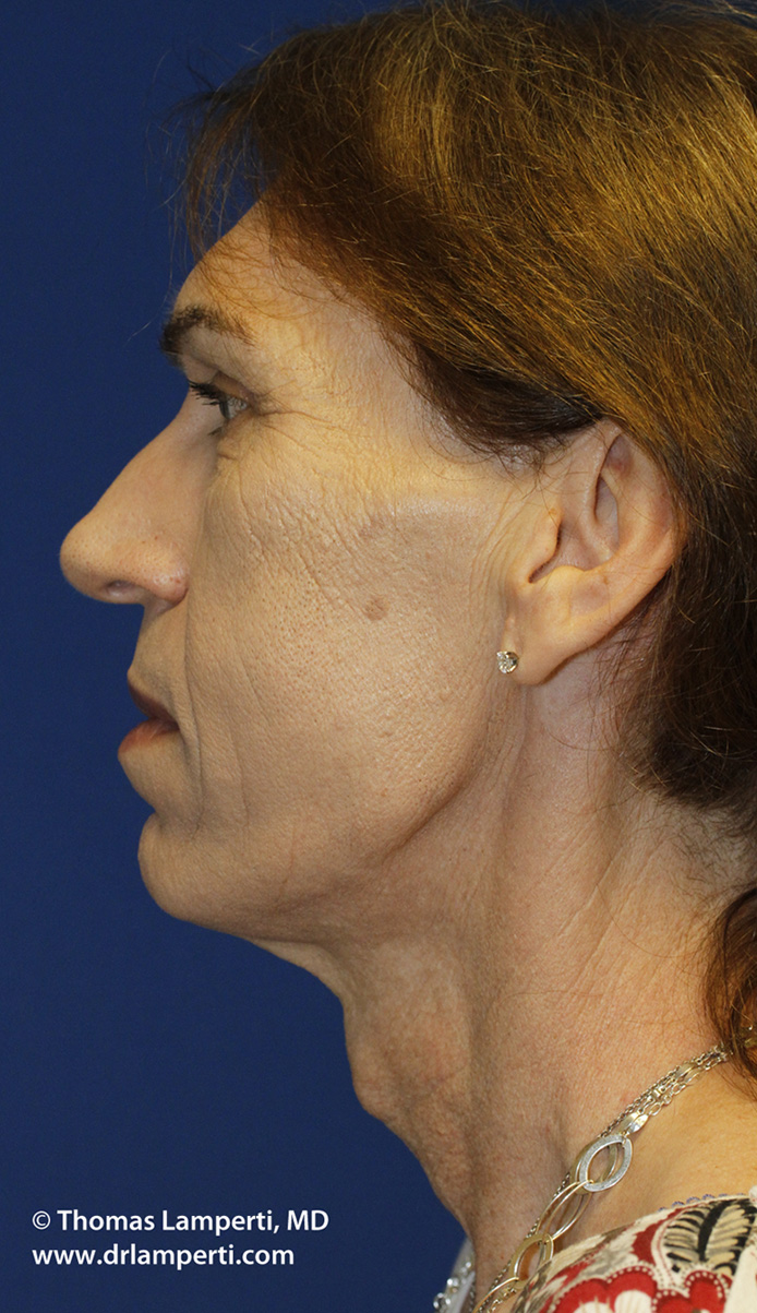 Before Tracheal Shave L Profile