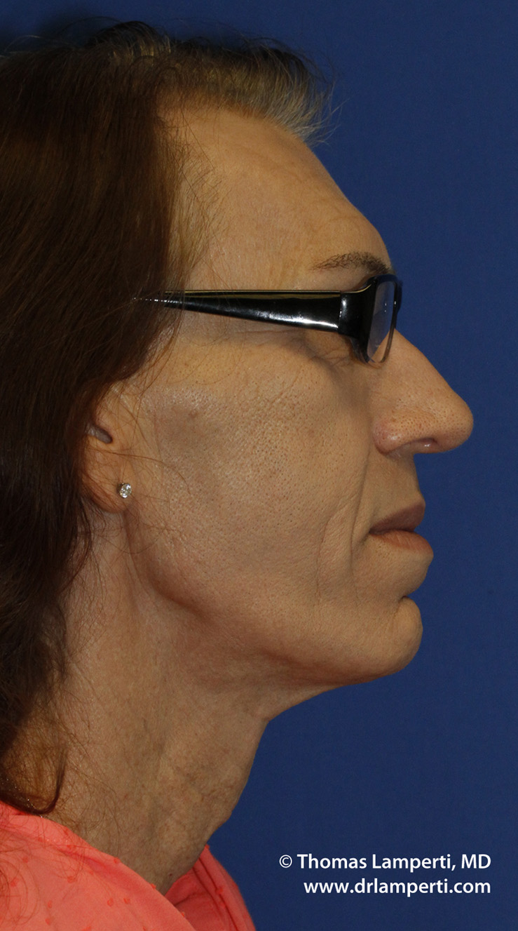 After Tracheal Shave R Profile