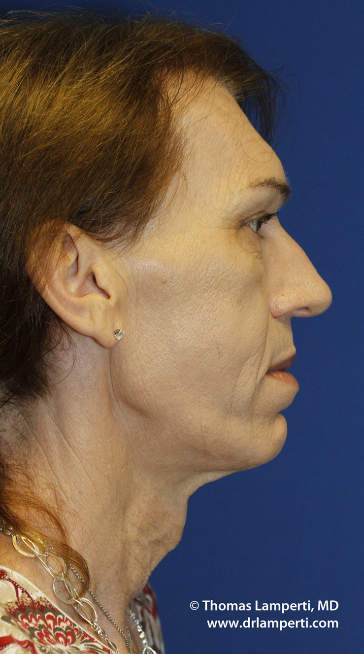 Before Tracheal Shave R Profile