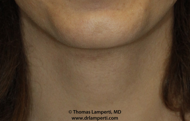Tracheal Shave Frontal After