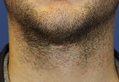 Tracheal Shave After Frontal