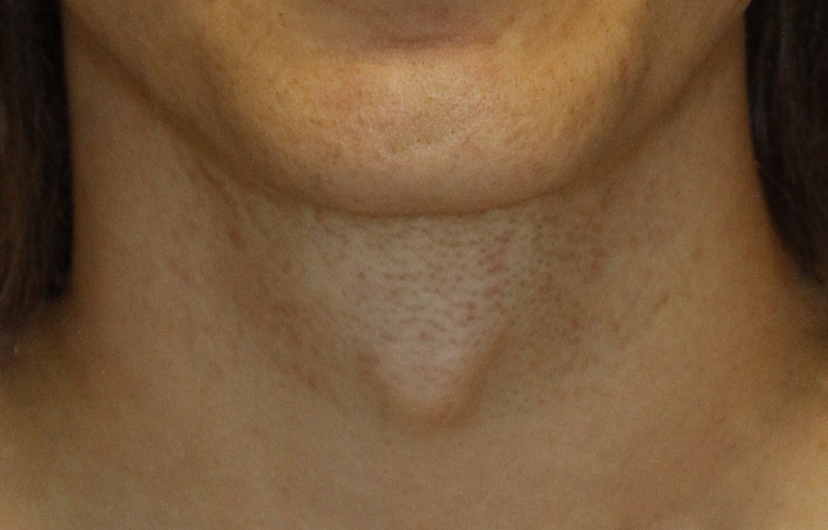 Tracheal Shave Frontal Before