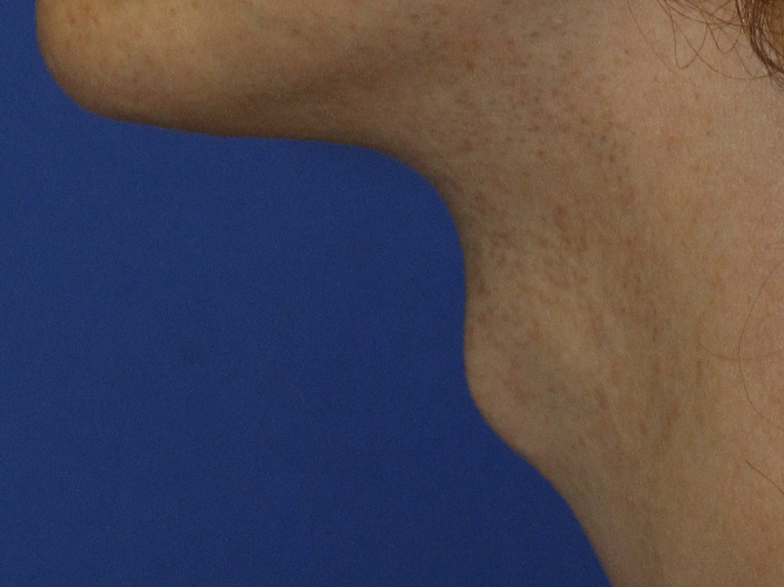 Tracheal Shave L Profile Before