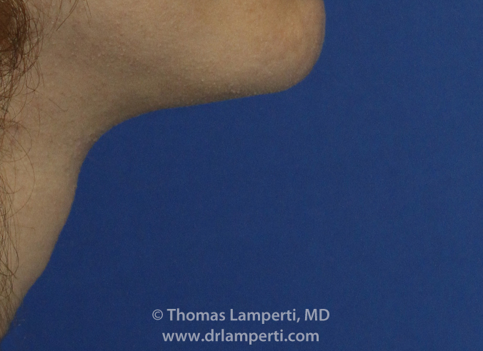 Tracheal Shave R Profile After