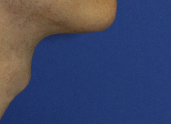 Tracheal Shave R Profile Before