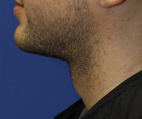 Tracheal Shave After Profile