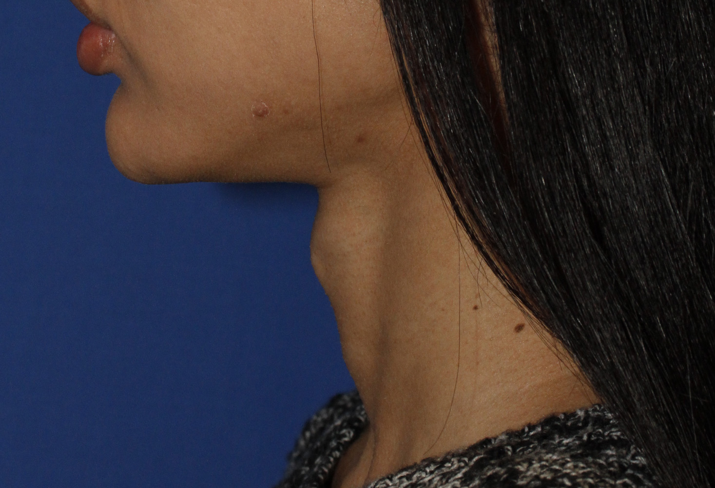 Tracheal Shave Before L Profile