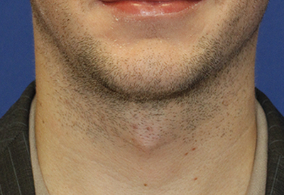 Tracheal Shave Before Frontal
