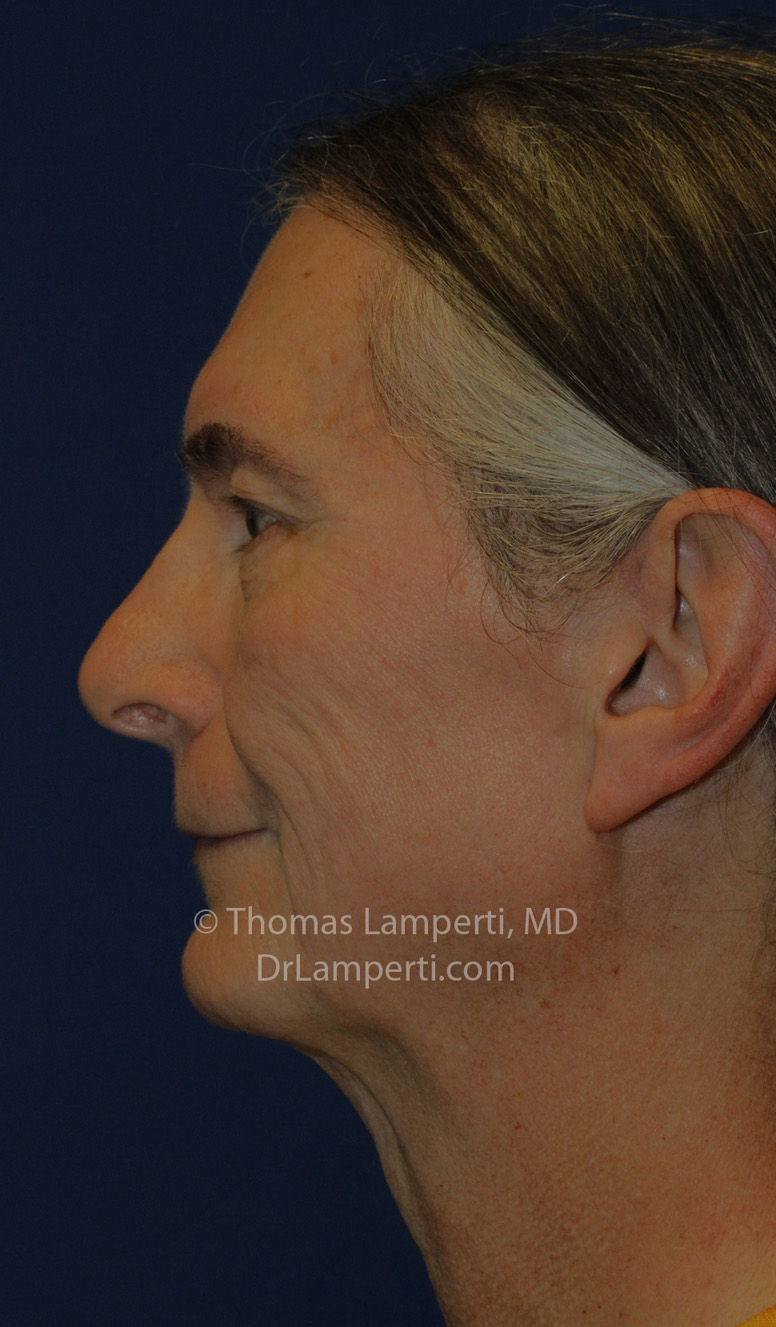 Tracheal Shave L Profile After