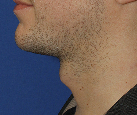 Tracheal Shave Before Profile
