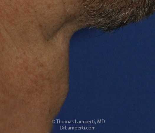 Tracheal Shave After