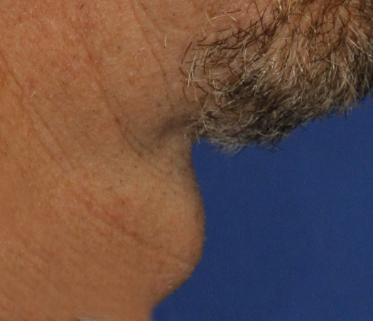 Tracheal Shave Before