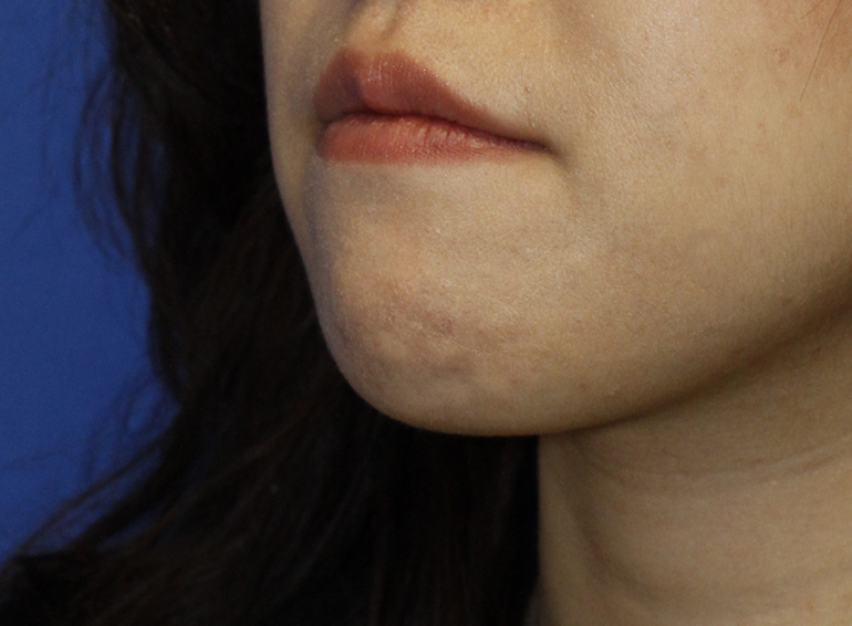 Chin Reduction Before L Oblique