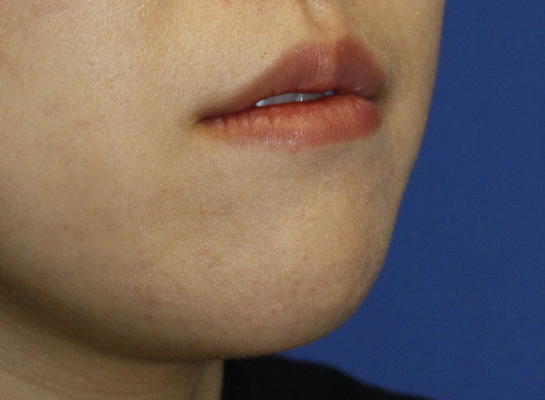 Chin Reduction Before R Oblique