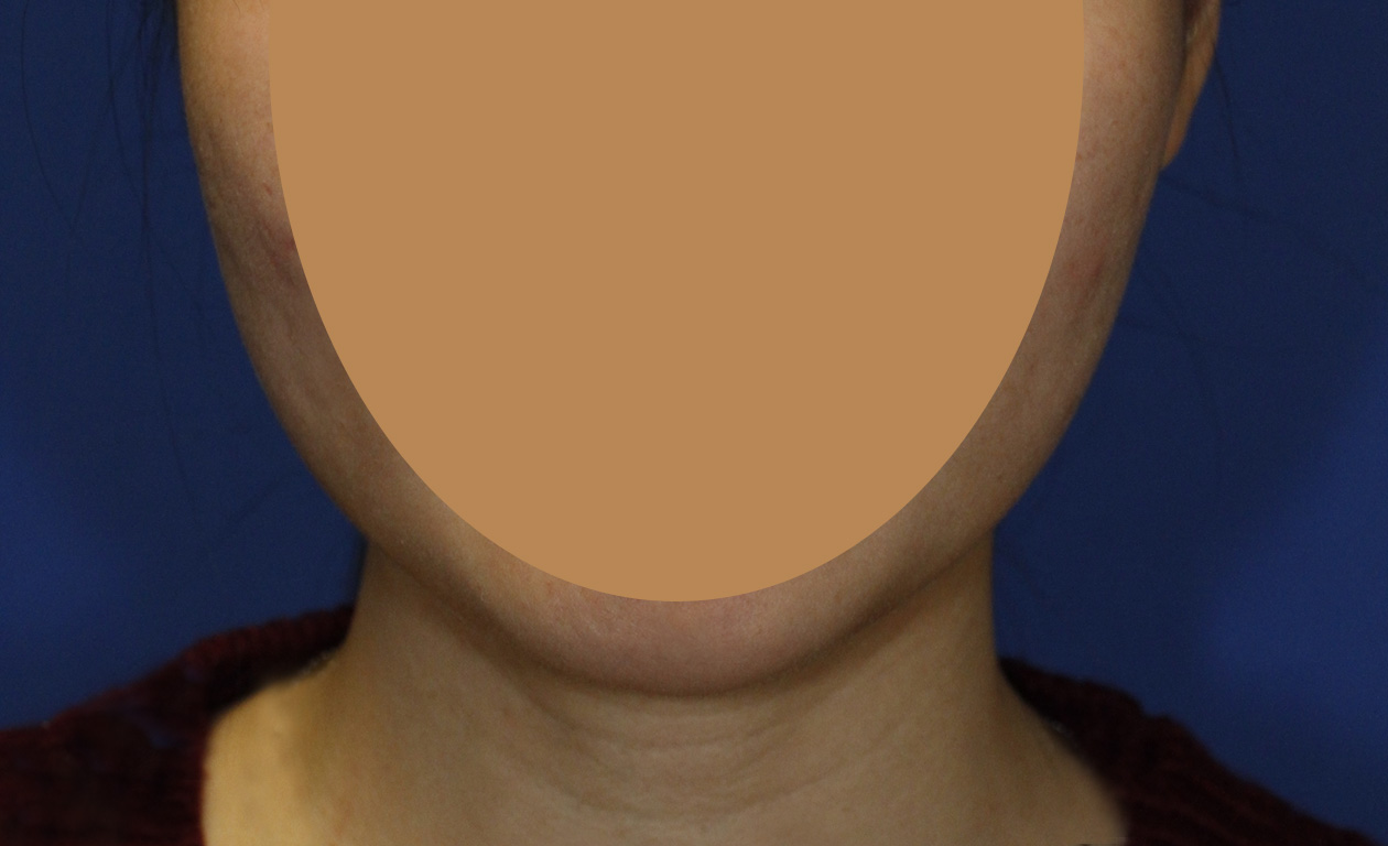 Masseter Muscle Botox After