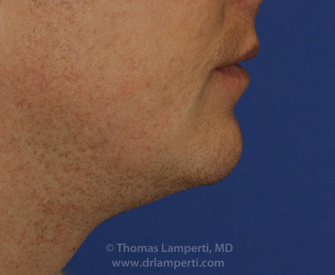 Chin Reduction R Profile After