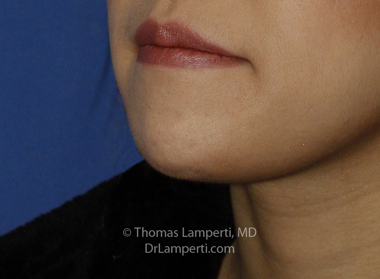 Chin Reduction After L Oblique