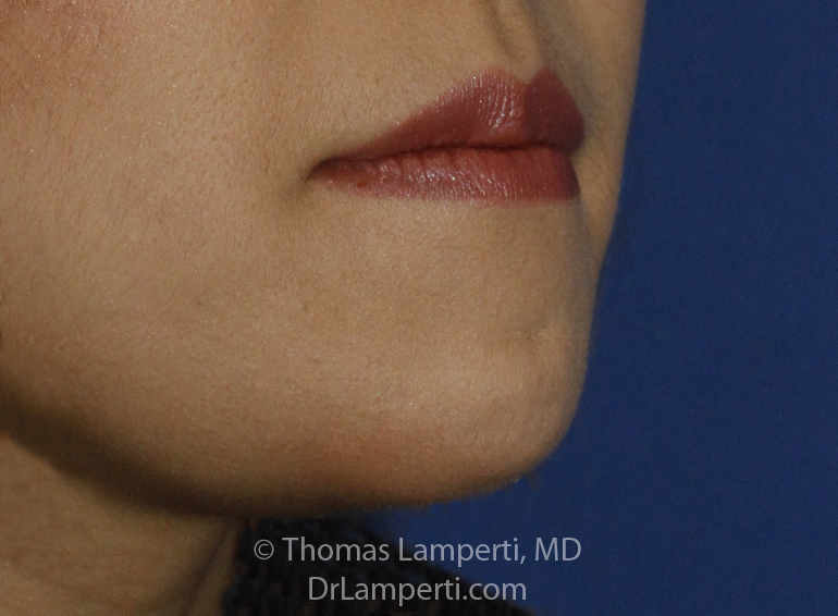 Chin Reduction After R Oblique