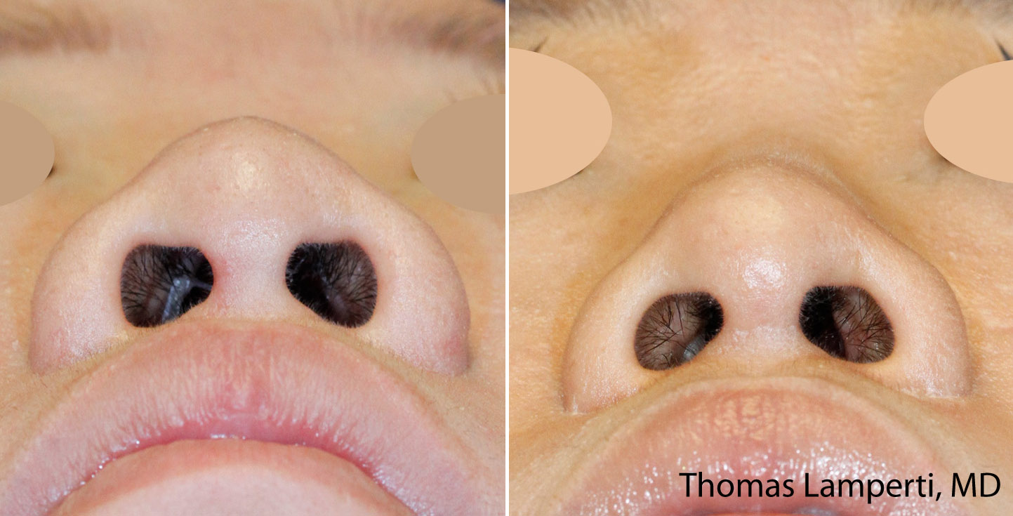 Japanese Asian rhinoplasty nostril reduction base view