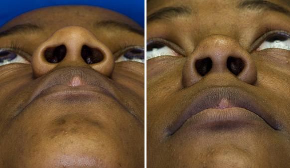Ethnic Rhinoplasty Seattle Facial Plastic Surgeon Dr