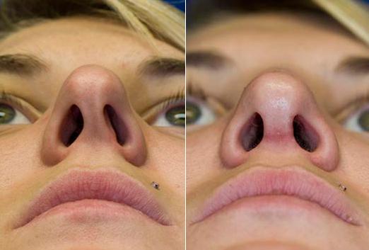 Исправление носовой перегородки фото