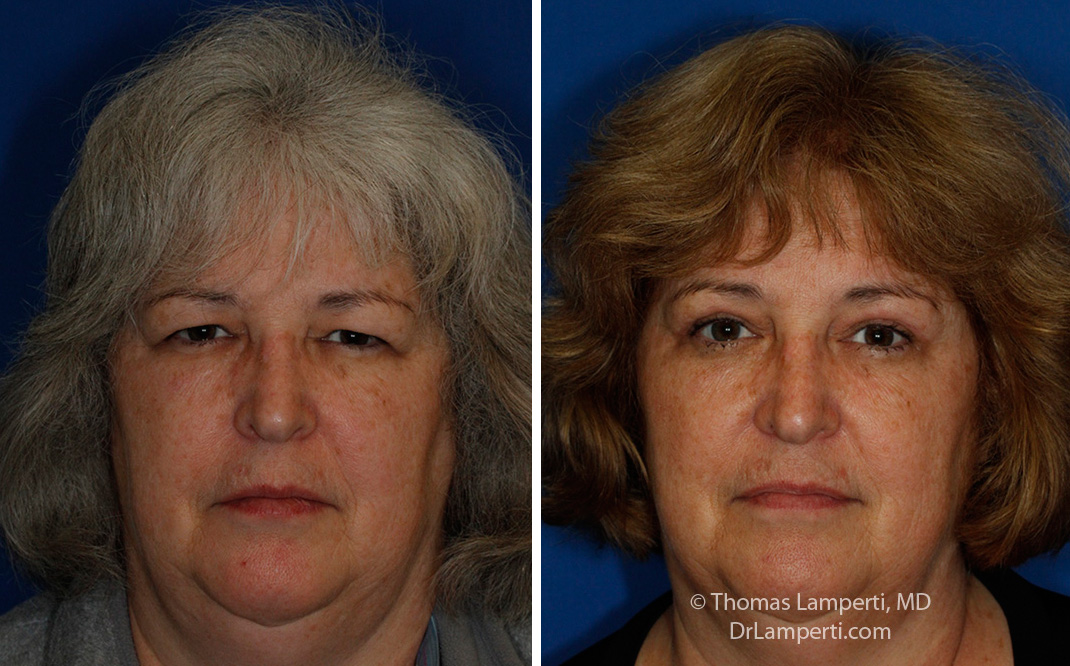 Blepharoplasty patient 51 with endoscopic brow lift frontal montage