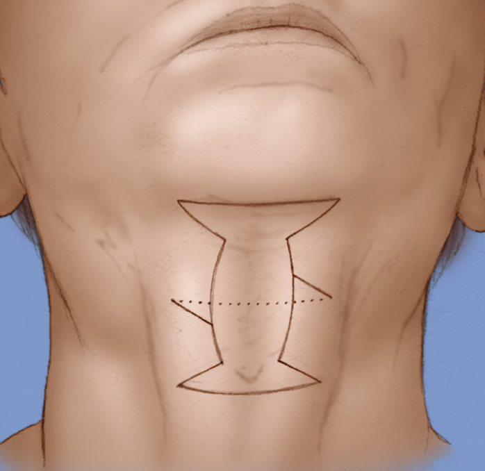 Grecian Urn direct neck lift incision schematic.