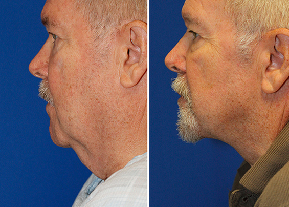 Grecian Urn direct neck lift before and after profile photos. After photo is on the right and wsa taken 1 year after surgery.