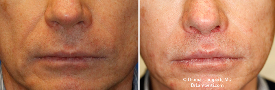 Subnasal lip lift male before and after
