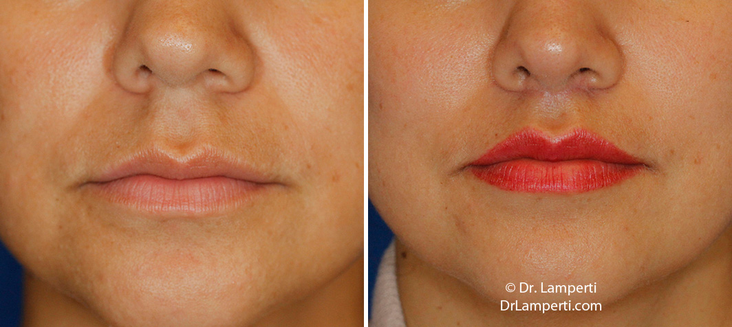 Subnasal lip lift frontal montage before and after