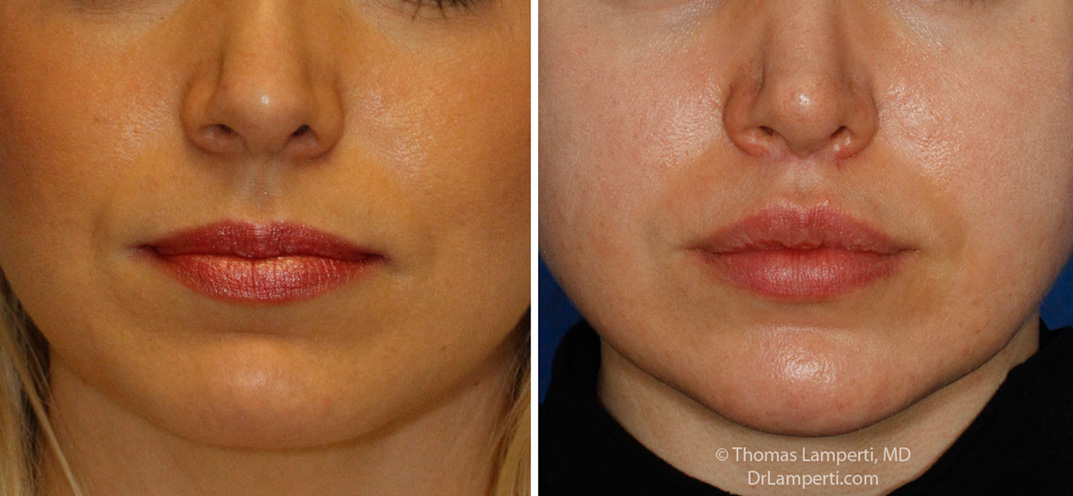 Lip Lift patient 8 subnasal lift before and after frontal