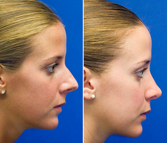 Before and after long nasal tip rhinoplastyFemale Nose Profile