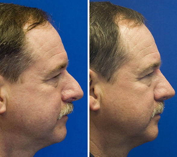 Male Rhinoplasty Before and After Photos   Seattle Facial