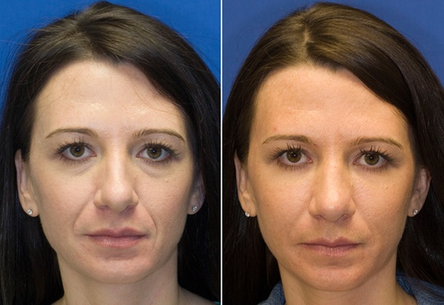 Using Radiesse filler to correct prominent smile lines