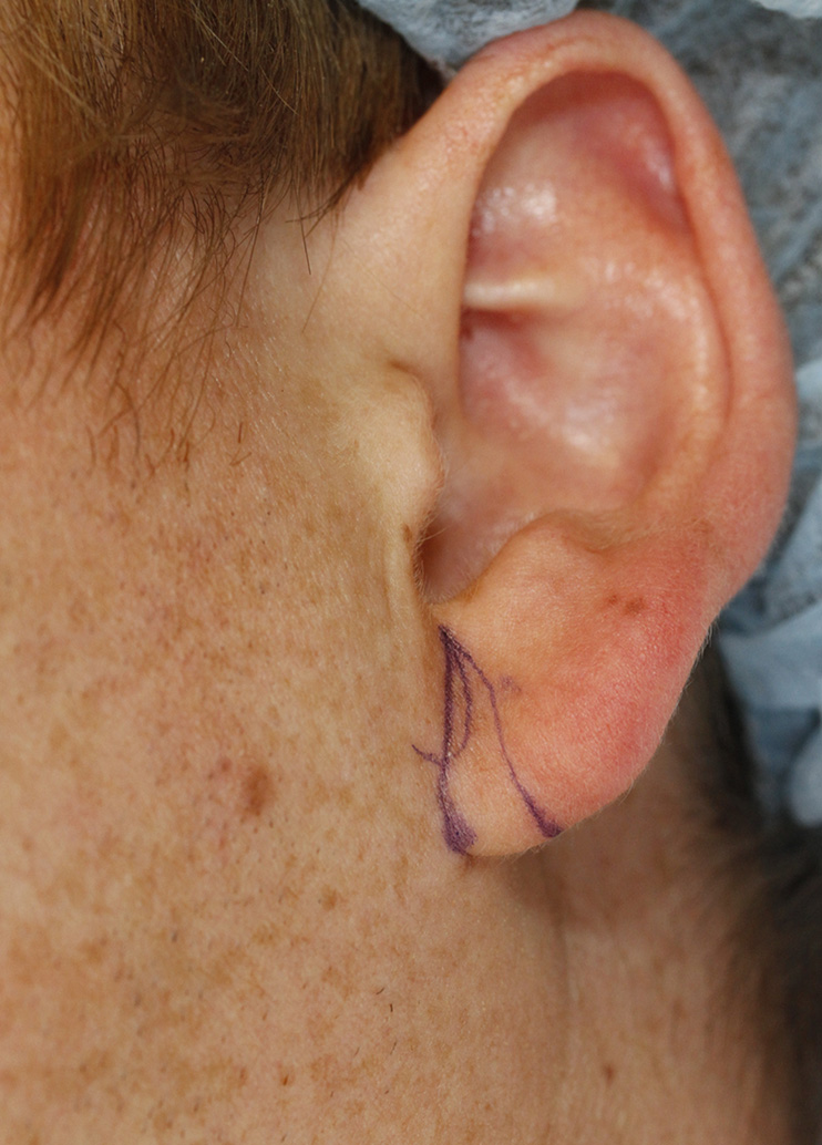otoplasty-patient-8-l-auricle-detail-with-skin-markings.jpg