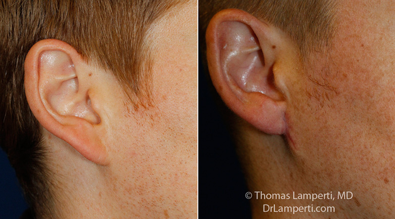 otoplasty-patient-7-r-auricle-detail-montage.jpg