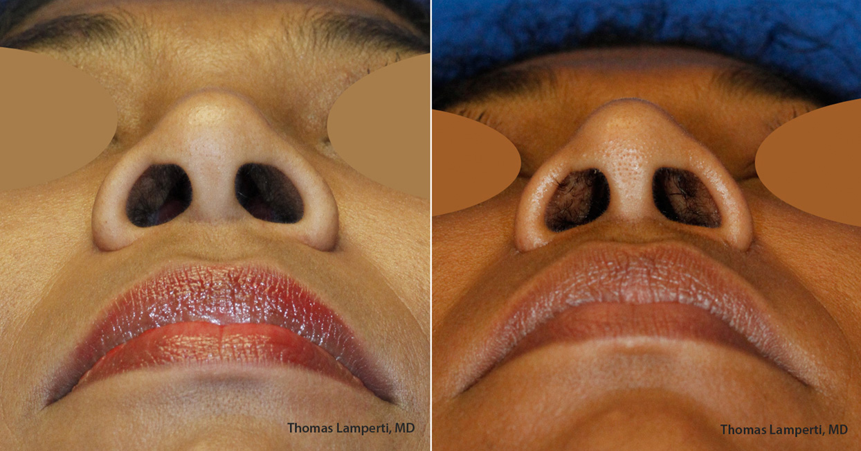 African-Dominican nostril width reduction using wedge excision technique