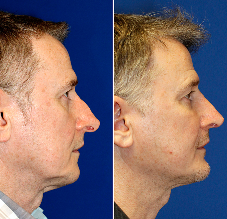 How To Get A Necklift With a Chin Implant | Seattle Facial