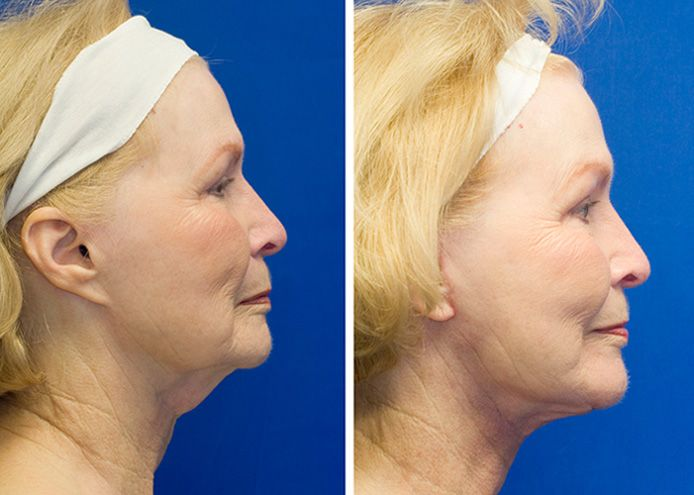 Revision Facelift Fixing The Pixie Ear Deformity