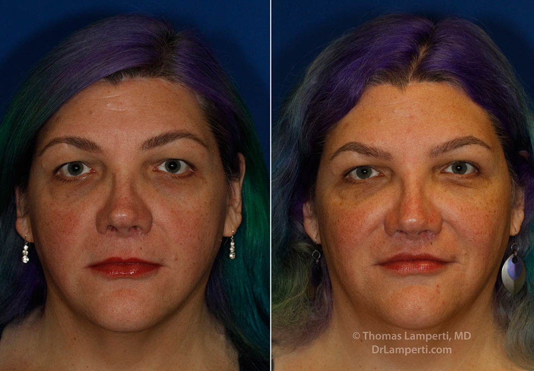 Revision upper lip lift frontal before and after