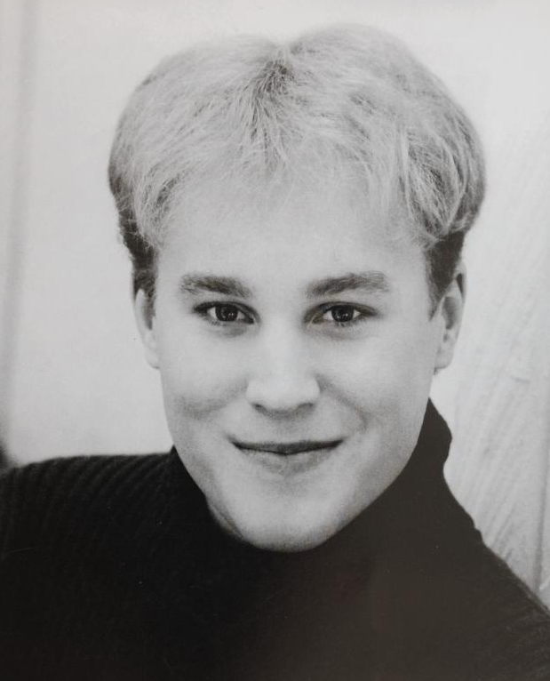 Toby Sheldon at age 23 before having hair transplant and facial plastic surgery.png.png