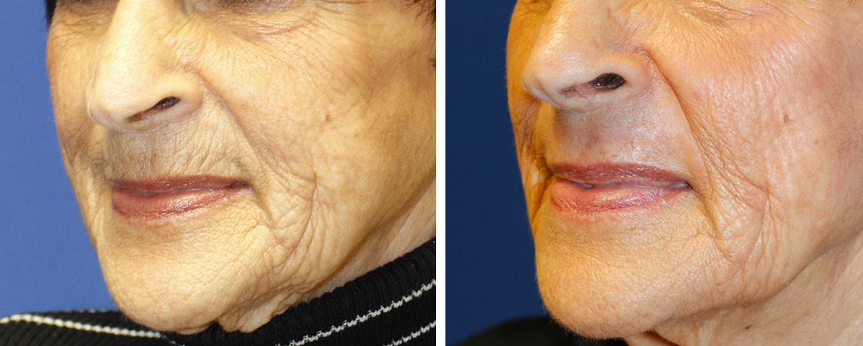 How to erase upper lip wrinkles with dermabrasion | Seattle